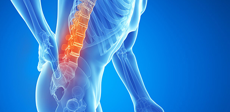 Back Pain Relief at the Neuropathy & Pain Centers of Texas