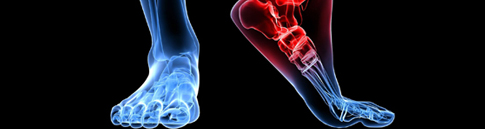 Neuropathy & Stem Cell Therapy in Fort Worth, TX - Neuropathy & Pain Centers of Texas