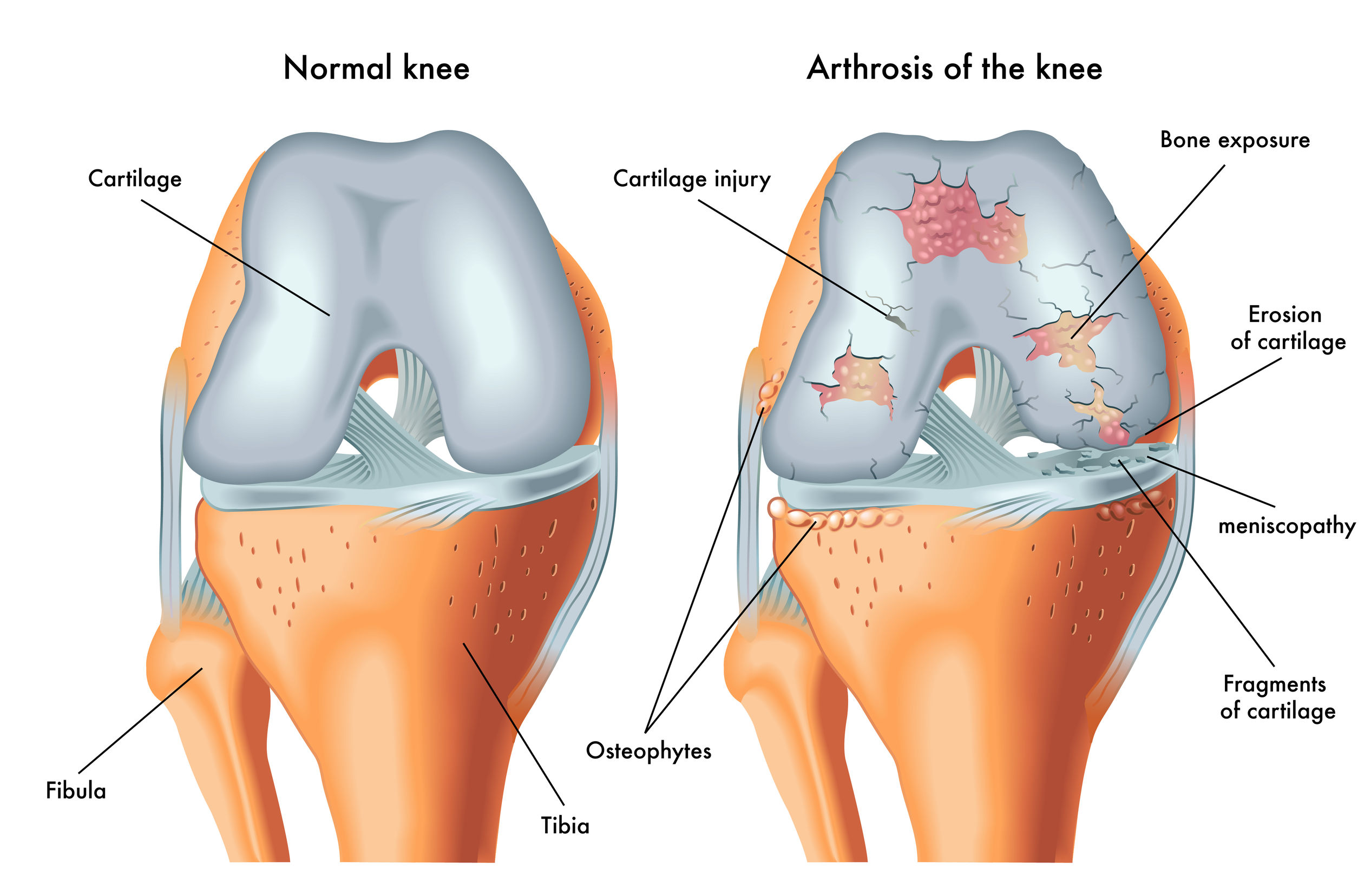 An anatomical diagram of a human knee joint