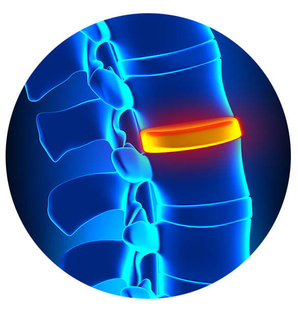 Back & Spine Pain Relief - Central Texas - Neuropathy & Pain Centers of Texas
