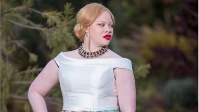 Photo of Success stories of people living with albinism