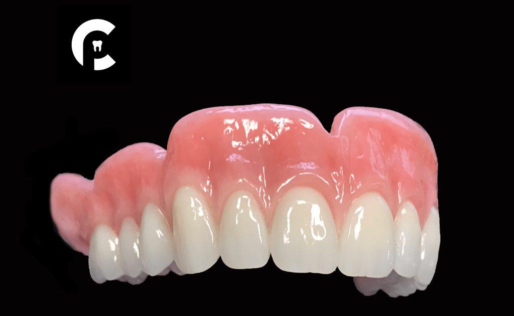 Cosme_Prosthetics_denture