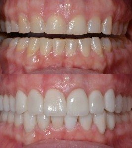 Full Mouth Restorations