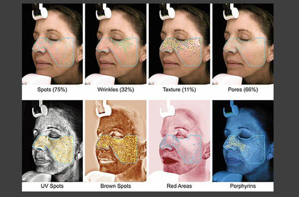 Visia Skin Analysis – High Tech Ammunition For Premature Aging