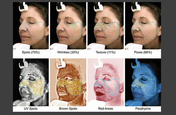 Visia Skin Analysis – High Tech Ammunition For Premature Aging