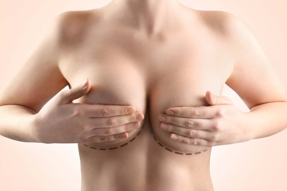 Lift Your Confidence With A Breast Lift