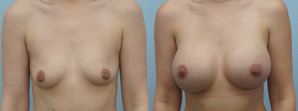 BREAST AUGMENTATION PATIENT 58