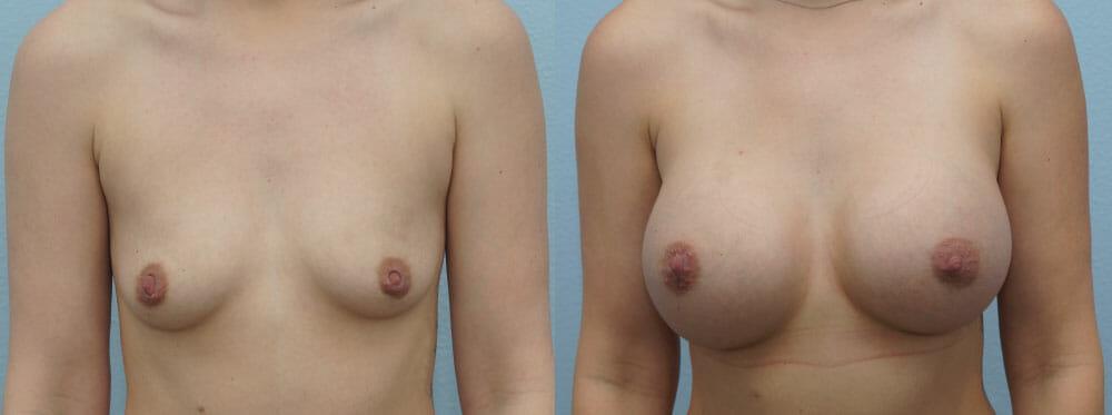 BREAST AUGMENTATION PATIENT 58