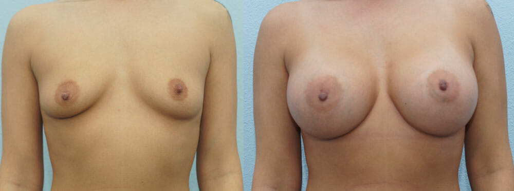 BREAST AUGMENTATION PATIENT 57