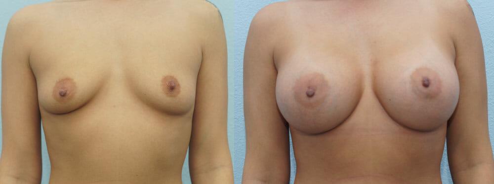 BREAST AUGMENTATION PATIENT 57