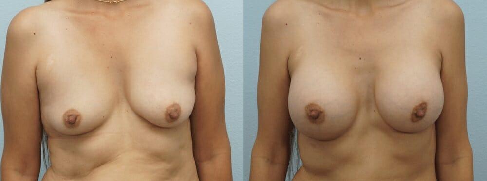 BREAST AUGMENTATION PATIENT 23