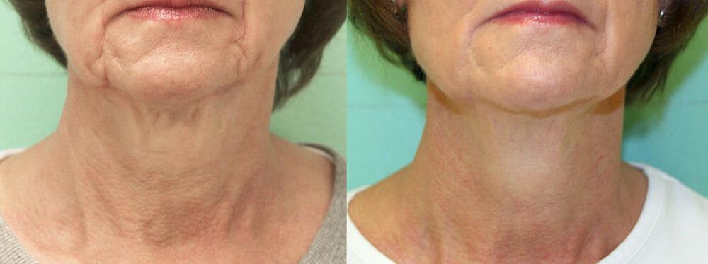 Facial Skin Tightening Infini | Neaman Plastic Surgery