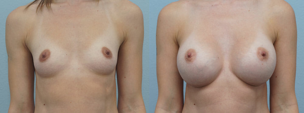 BREAST AUGMENTATION PATIENT 49