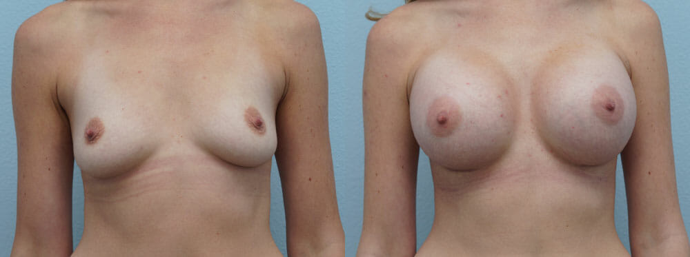 BREAST AUGMENTATION PATIENT 48