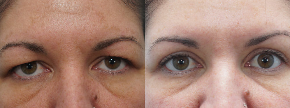 EYELID SURGERY (BLEPHAROPLASTY) PATIENT 15