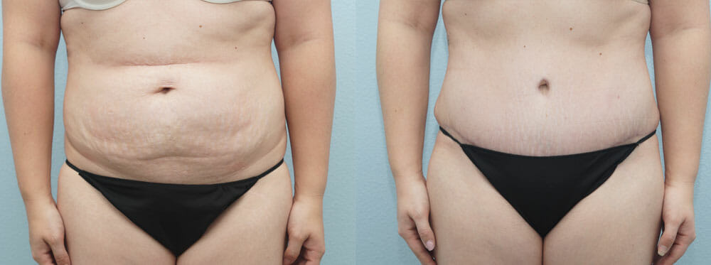 TUMMY TUCK (ABDOMINOPLASTY) PATIENT 13