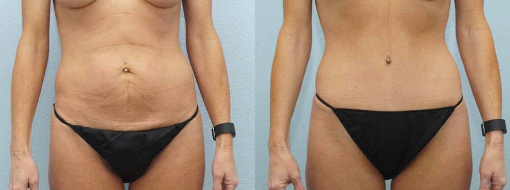 TUMMY TUCK (ABDOMINOPLASTY) PATIENT 14