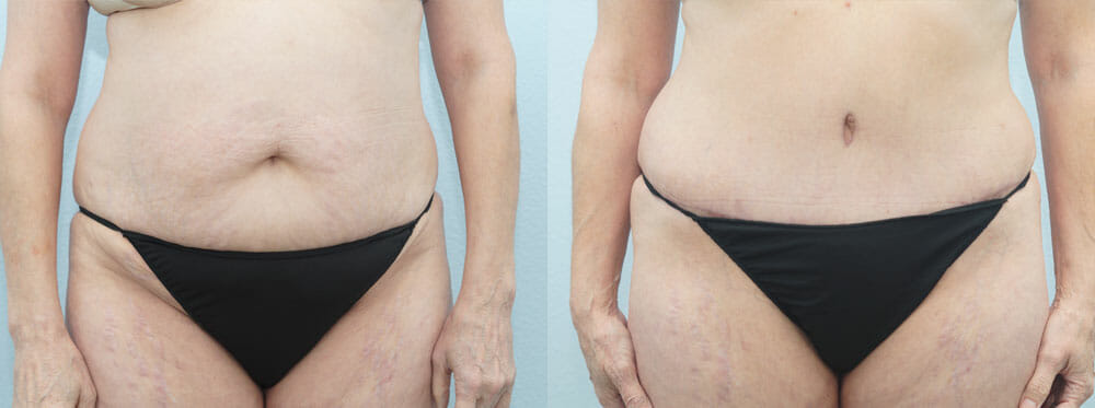 TUMMY TUCK (ABDOMINOPLASTY) PATIENT 15