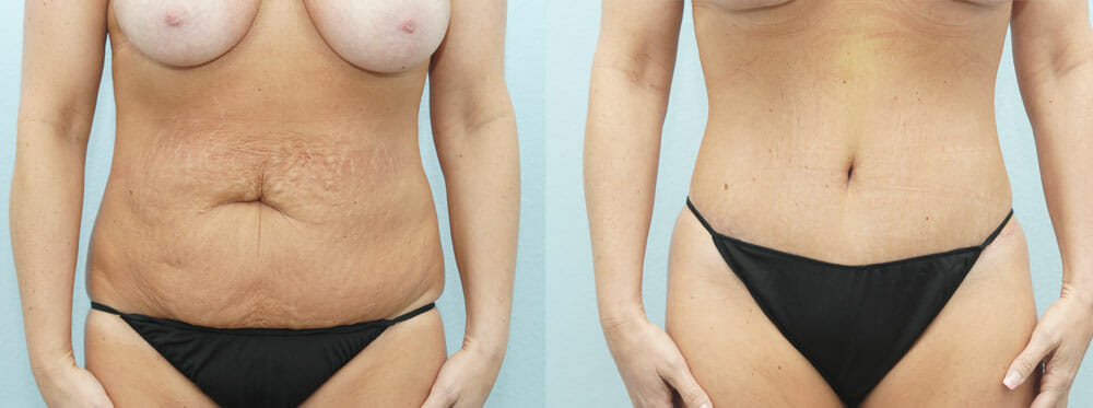 TUMMY TUCK (ABDOMINOPLASTY) PATIENT 6