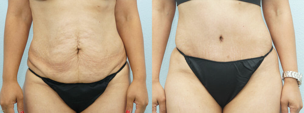 TUMMY TUCK (ABDOMINOPLASTY) PATIENT 8