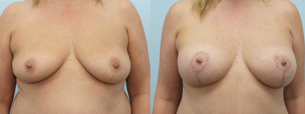 BREAST LIFT WITH IMPLANTS PATIENT 8