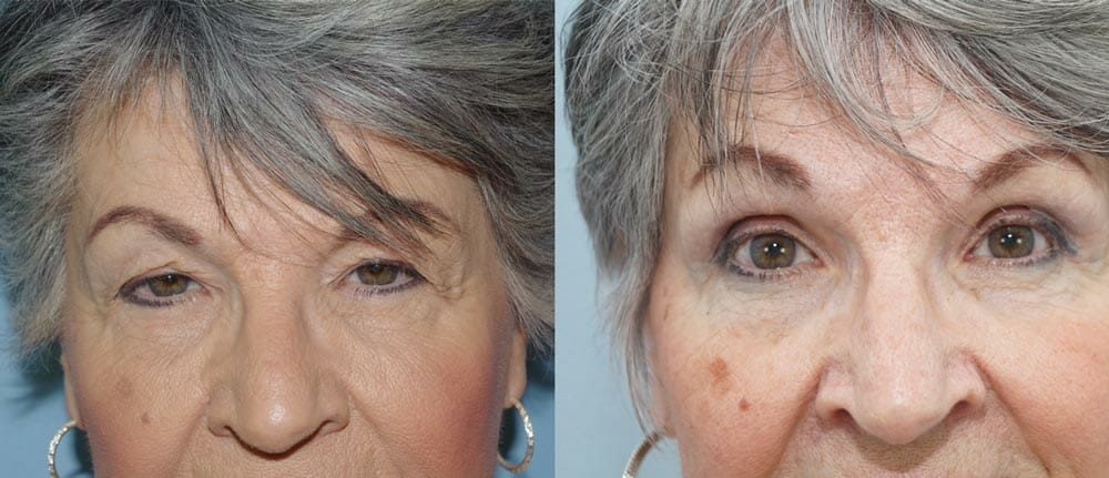 BROWLIFT AND EYELID SURGERY (BLEPHAROPLASTY) PATIENT 4
