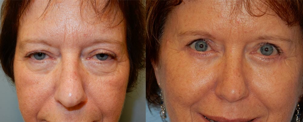 BROWLIFT AND EYELID SURGERY (BLEPHAROPLASTY) PATIENT 5