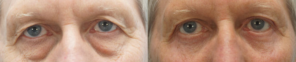 EYELID SURGERY (BLEPHAROPLASTY) PATIENT 7