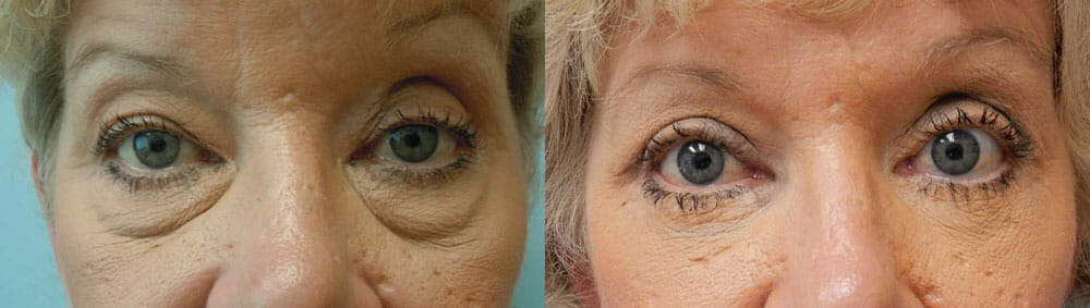 BROWLIFT AND EYELID SURGERY (BLEPHAROPLASTY) PATIENT 2