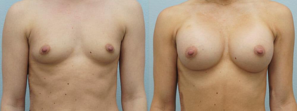 BREAST AUGMENTATION PATIENT 13