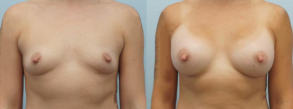 BREAST AUGMENTATION PATIENT 14