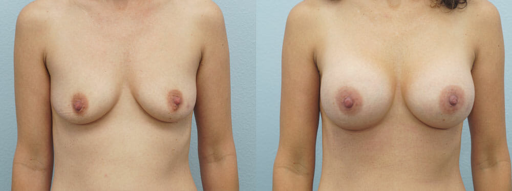 BREAST AUGMENTATION PATIENT 17