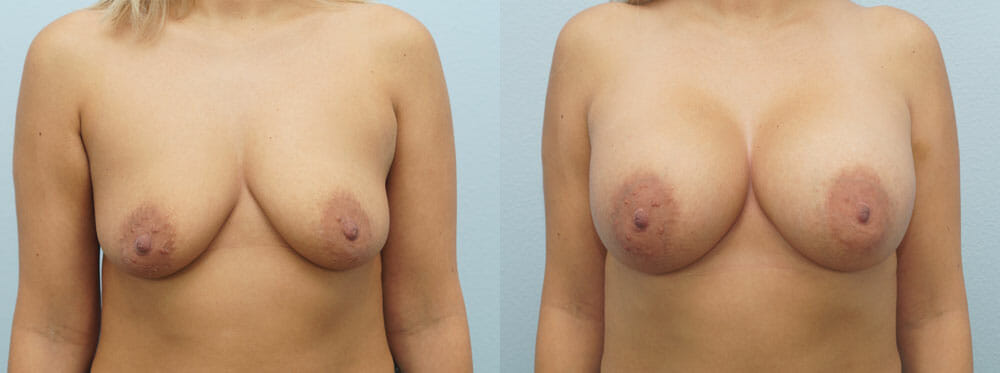 BREAST AUGMENTATION PATIENT 18