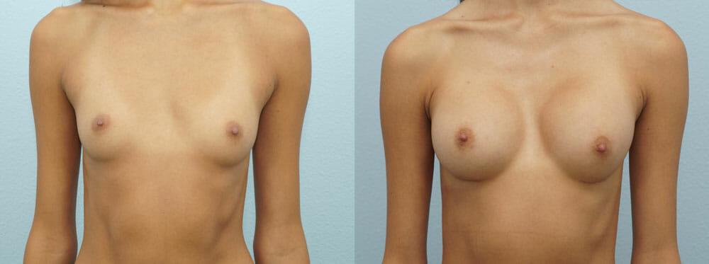 BREAST AUGMENTATION PATIENT 21