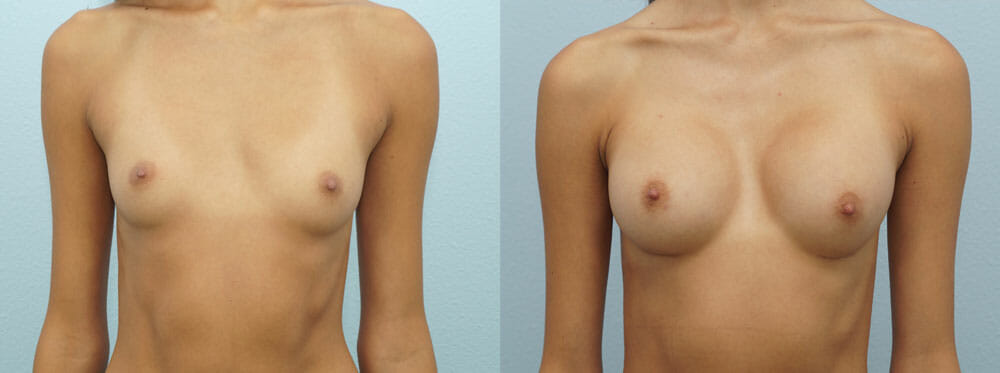 BREAST AUGMENTATION PATIENT 21