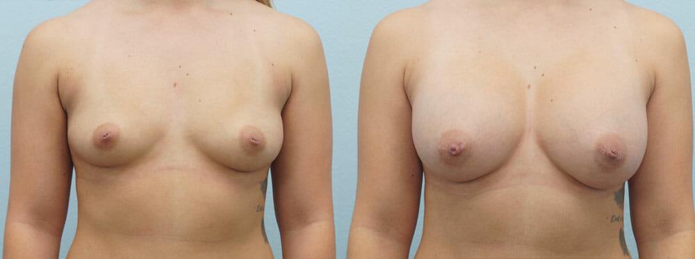 BREAST AUGMENTATION PATIENT 20