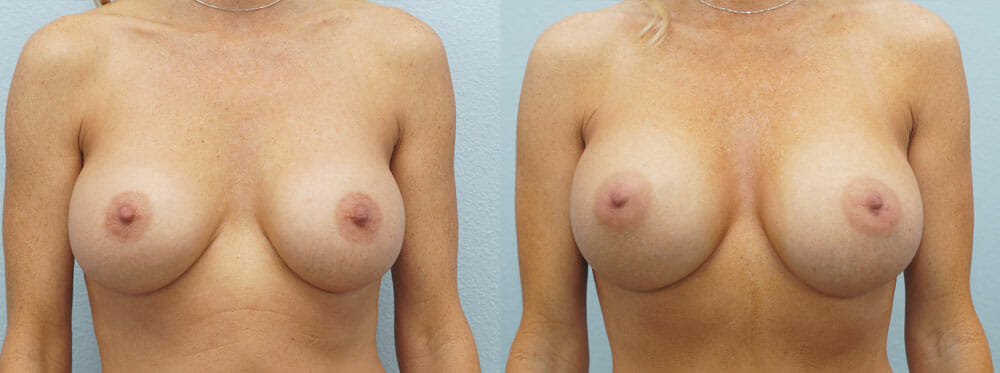 BREAST REVISION PATIENT 7