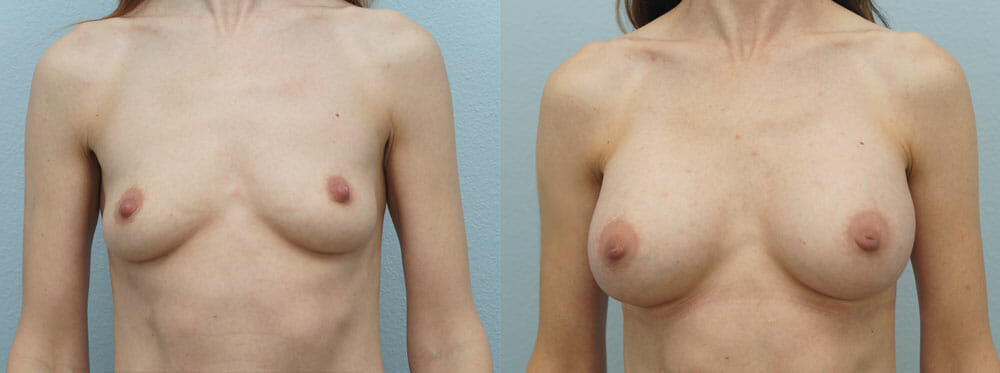 BREAST AUGMENTATION PATIENT 10