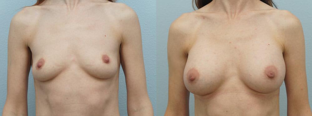 BREAST AUGMENTATION PATIENT 10
