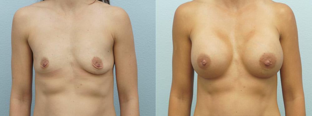 BREAST AUGMENTATION PATIENT 11