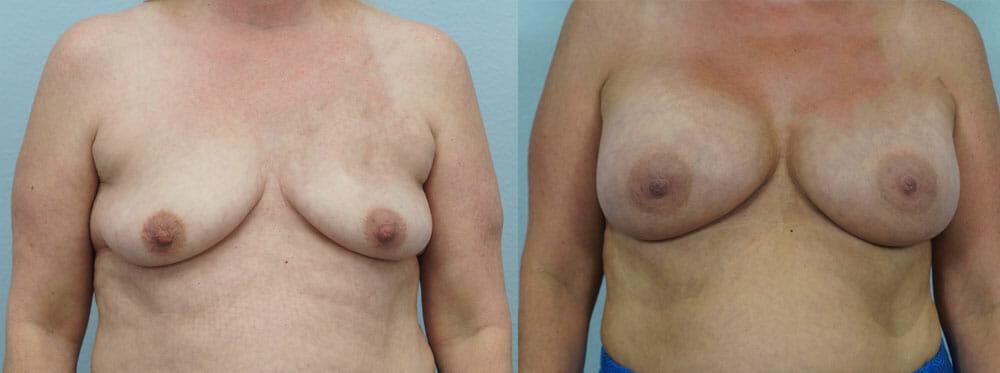BREAST AUGMENTATION PATIENT 12