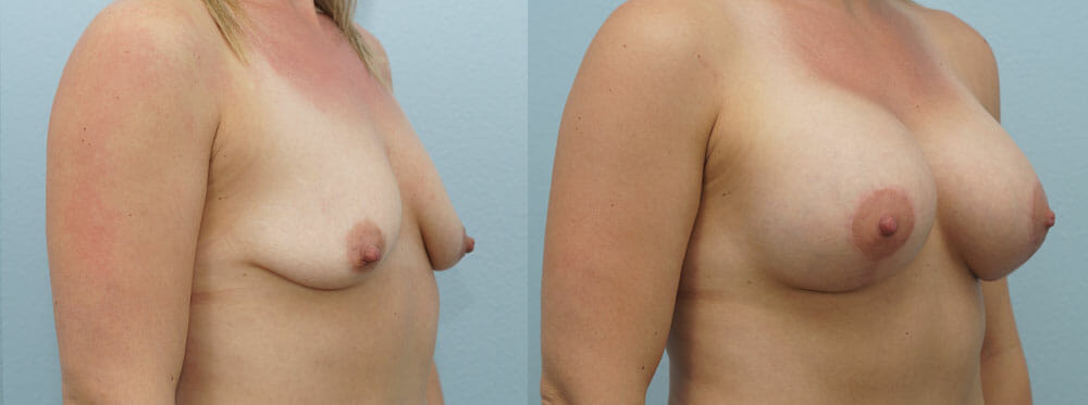 BREAST LIFT WITH IMPLANTS PATIENT 10