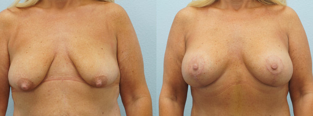 BREAST LIFT WITH IMPLANTS PATIENT 9