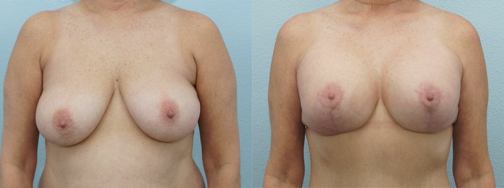 BREAST LIFT WITH IMPLANTS PATIENT 7