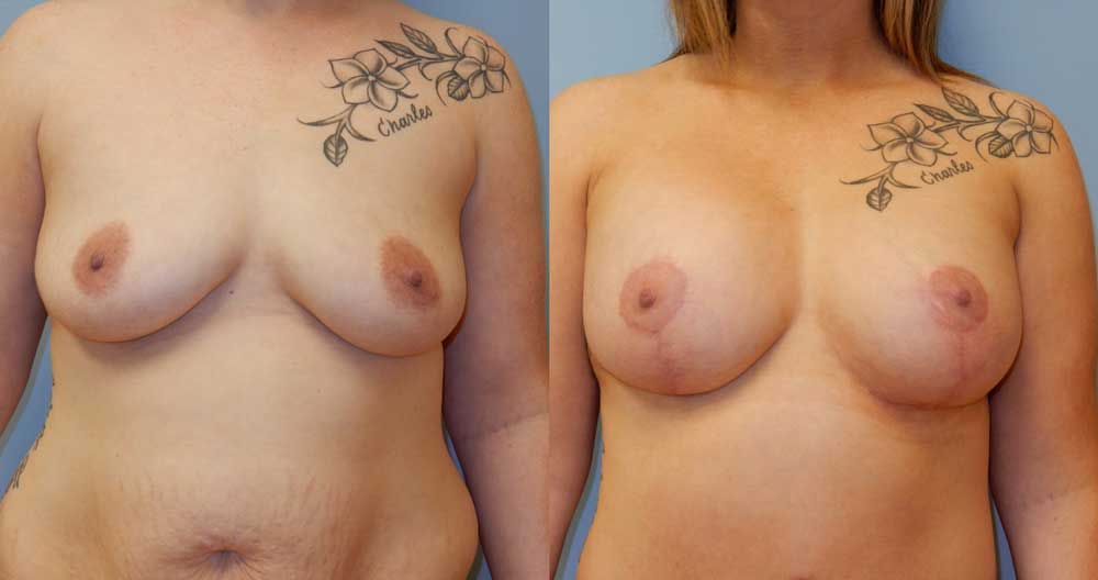 BREAST LIFT WITH IMPLANTS PATIENT 3