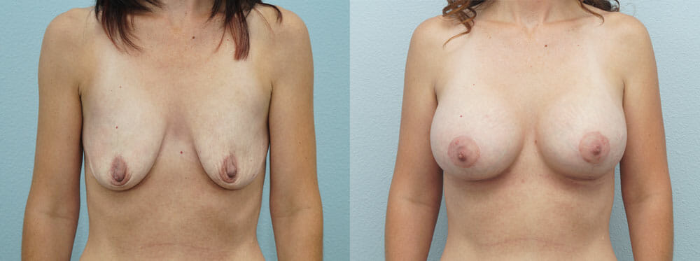 BREAST LIFT WITH IMPLANTS PATIENT 4