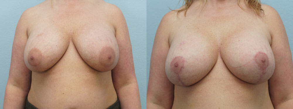 BREAST REVISION PATIENT 6