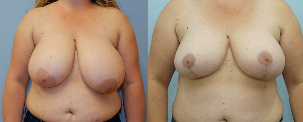 BREAST REDUCTION PATIENT 4