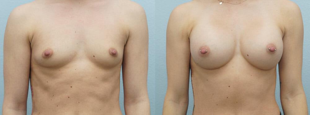 BREAST AUGMENTATION PATIENT 22