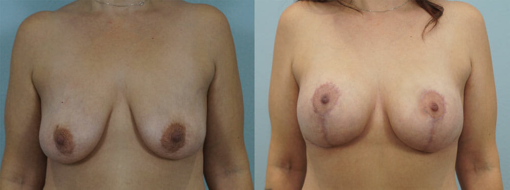 BREAST LIFT WITH IMPLANTS PATIENT 11